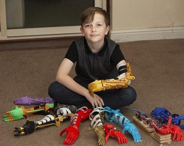 英国父亲为无臂儿子3D打印9只个性仿生臂