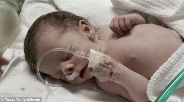 新生儿鼻孔正常结构图