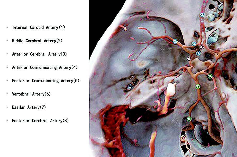 图 1:通过影像渲染头部常规 CT 扫描创建的教育课程显示了颅内动脉的解剖结构。图片由 Franz Fellner/ 开普勒大学医院提供。